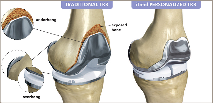 A Guide to Knee replacement surgery in India