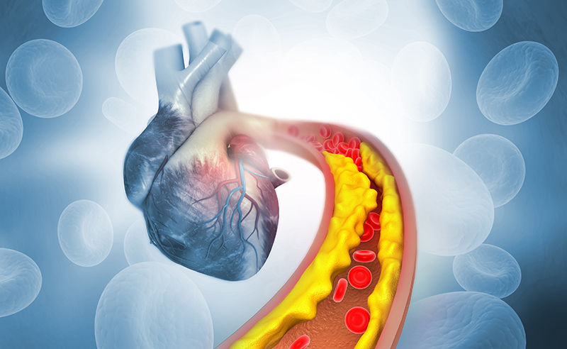 What is Angioplasty and How is it Done?