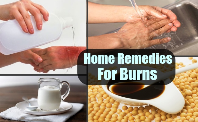 Follow these 7 home remedies on burning